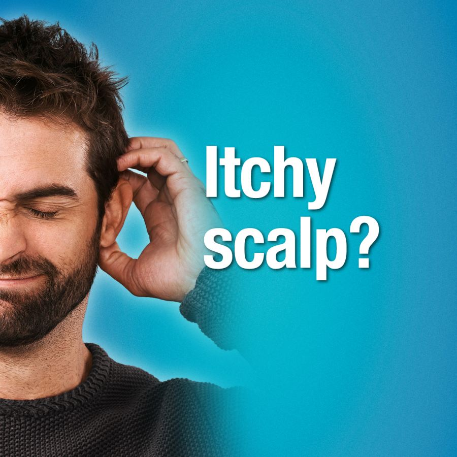 Men with dry, itchy scalp are a turn-off - poll